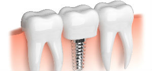 Implants | Dr. Tebay and Associates | Dentist Vienna, WV