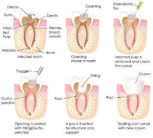 Root Canals | Dr. Tebay and Associates | Dentist Petersburg, WV